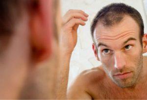 ¿Que pasa cuando llega la edad cuando el pelo pierde de su densidad?