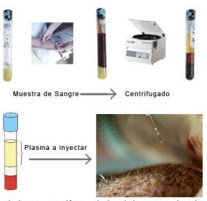 Tratamiento PRP y trasplante capilar