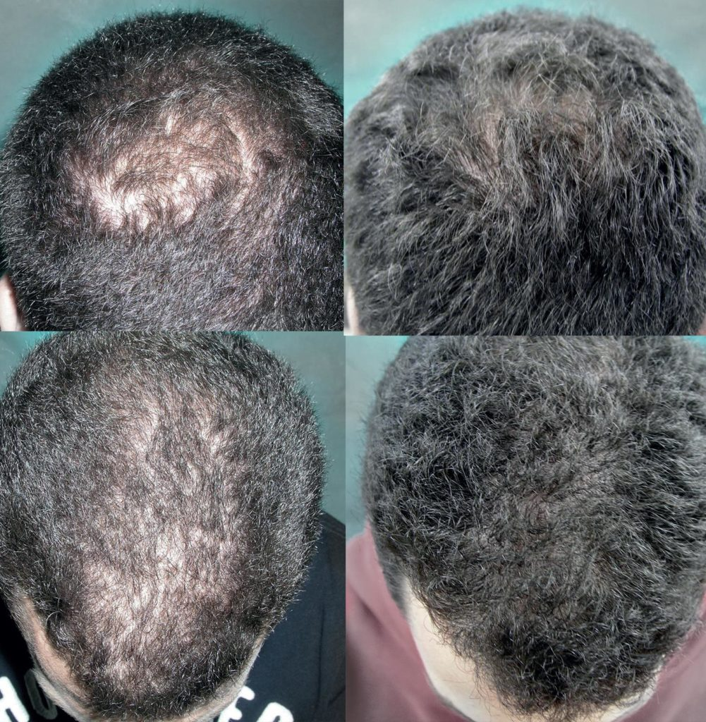 Tratamiento de pérdida de cabello con células madre - Medicina regenerativa con microinjertos